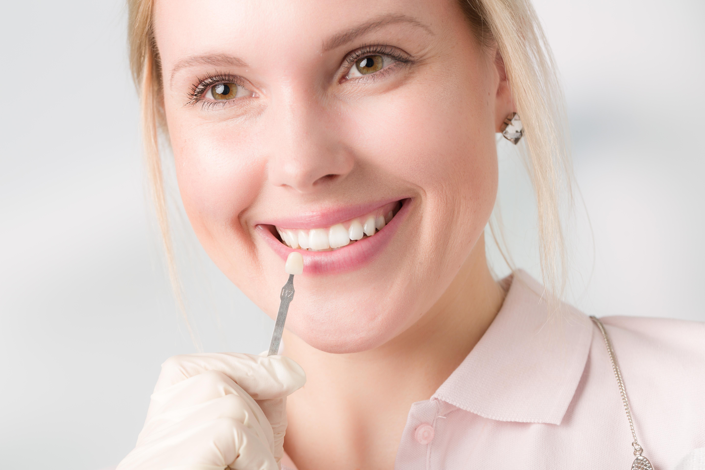 Veneers Pleasanton CA  Porcelain Veneer Dentist